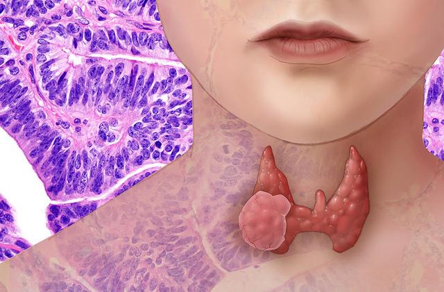 A pajzsmirigy ösztönzi az immunrendszert
