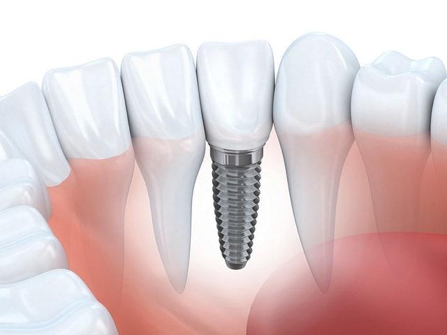 Fog implantátum gyorsan és fájdalommentesen