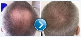 Hair Transplant hajproblémák esetére!